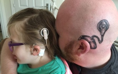 Dad gets tattoo of implant on his head to support daughter wearing hearing aid